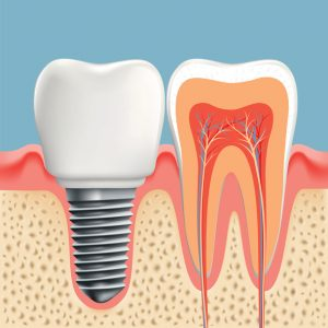 Restore your smile with dental implants in Homer Glen.