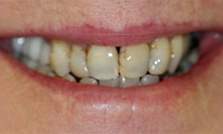 Extremely decayed and damaged teeth