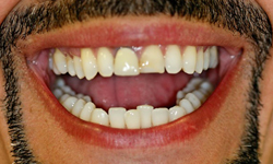 Darkly stained and damaged teeth