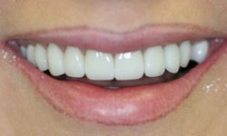 Flawless smile after veneer and crown makeover
