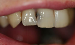 Decayed teeth with dark stains