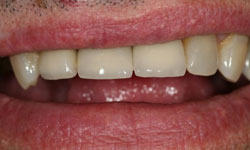 Front tooth after whitening