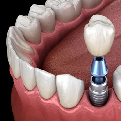 Dental implant in lower arch with a single crown