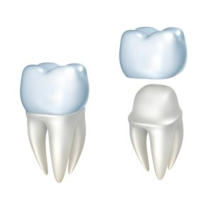 digital model of dental crown