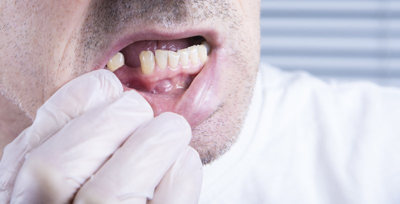 a man wearing a glove and pulling his lower lip down to expose his missing tooth