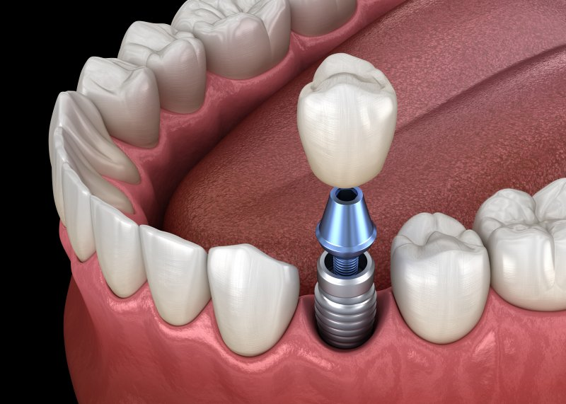 3D render of implant and crown for lower front tooth