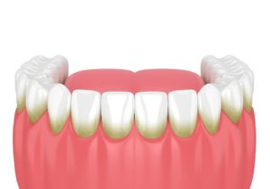 Plaque caused by poor oral hygiene, a gum disease risk factor